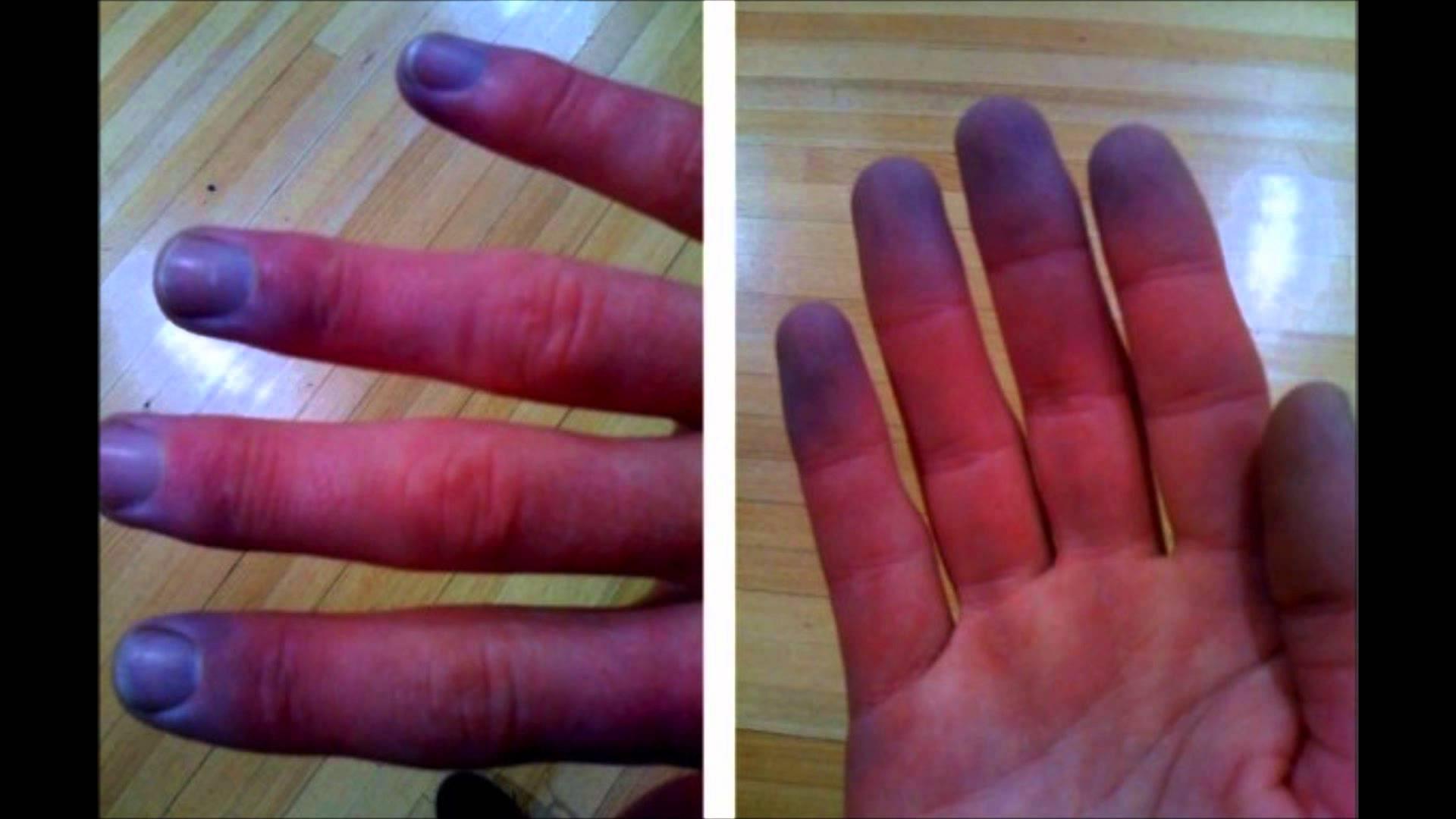 Что такое цианоз кожи рук