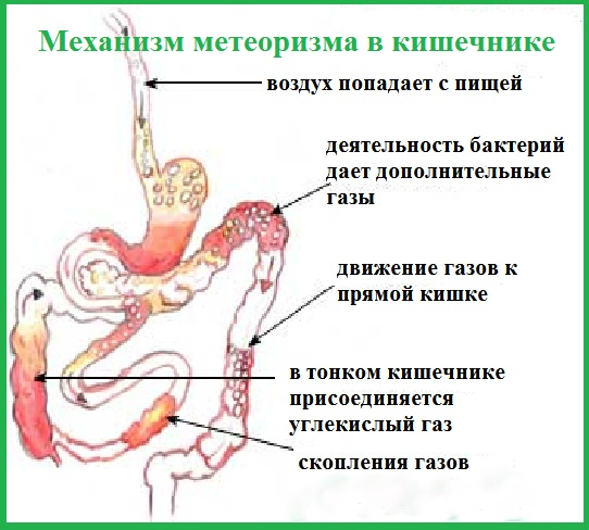 Метеоризм в кишечнике