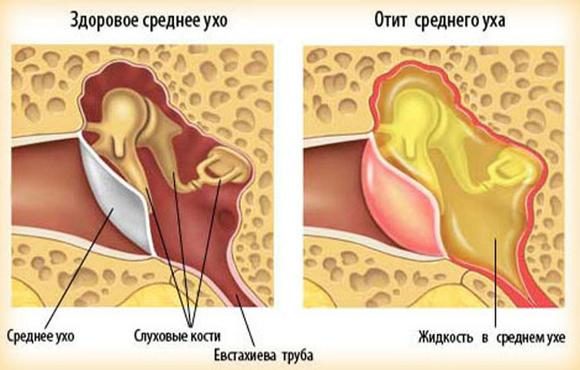 Здоровое и воспалённое ухо