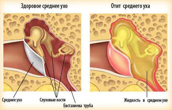 Можно ли отипакс при беременности