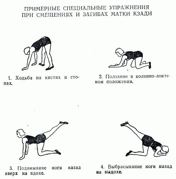 Упражнения при загибе матки