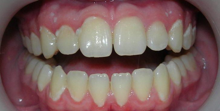Белый налёт на зубах