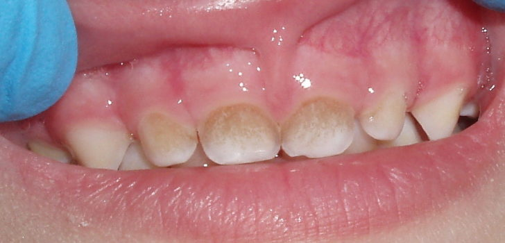 Пигментированый зубной налёт на молочных зубах
