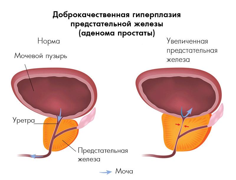 Стоимость операции рака предстательной железы в москве
