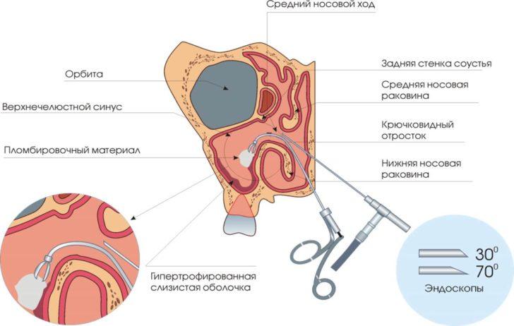Эндоскопическая антростомия