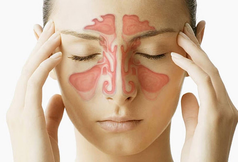 Хронический гайморит: симптомы, причины развития и способы лечения