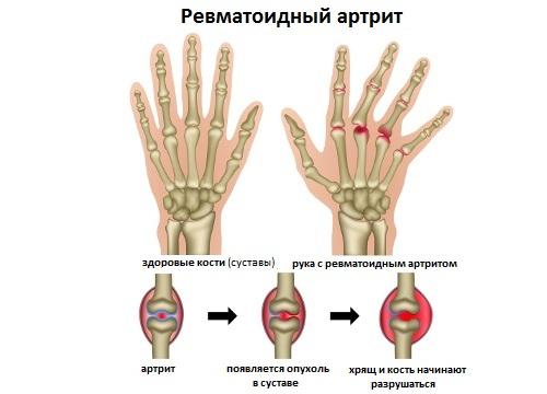Признаки рака кишки и лечение
