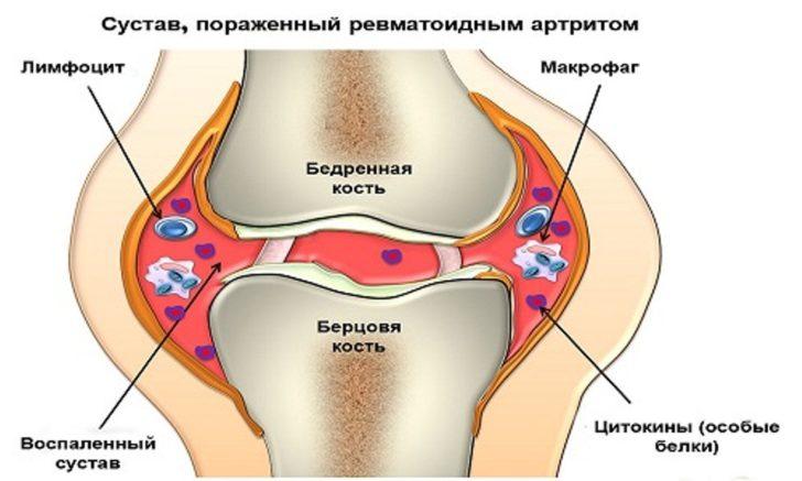 Сустав, поражённый ревматоидным артритом