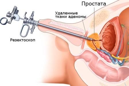 Рак предстательной железы 3-я стадия