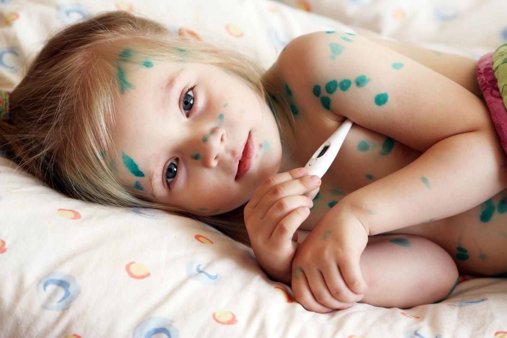 аллергия на ацикловир у взрослых