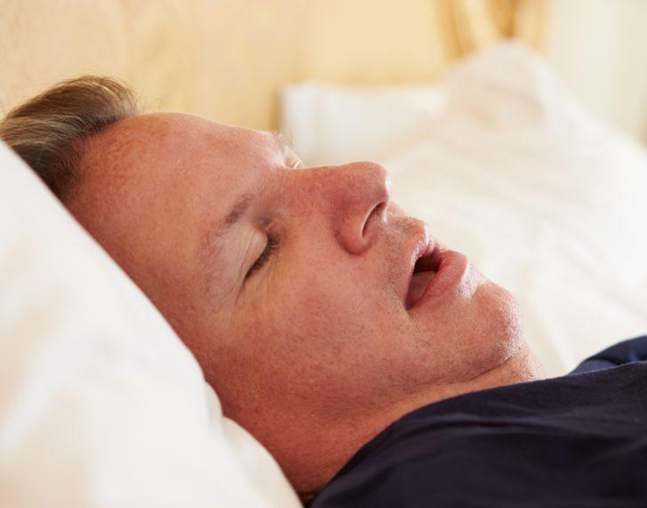 Апноэ сна у взрослых
