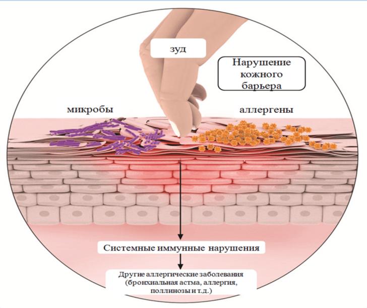 Чем опасен варикоз на ногах?  Все о лечении варикоза