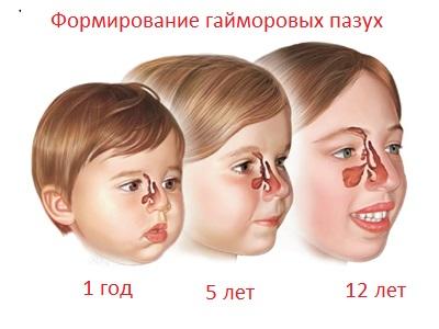 Гайморовы пазухи у детей