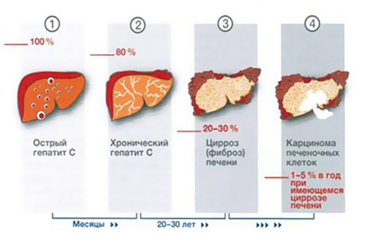 Классификация гепатита С