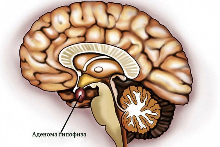 Патологические причины возникновения гиперпролактинемии
