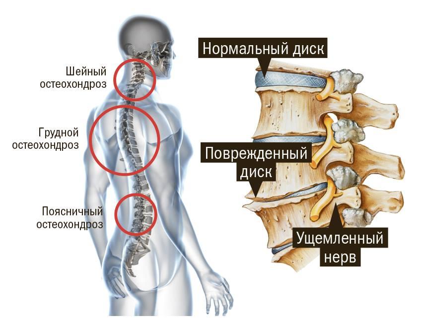 Разогревающая мазь для мышц и суставов недорогая