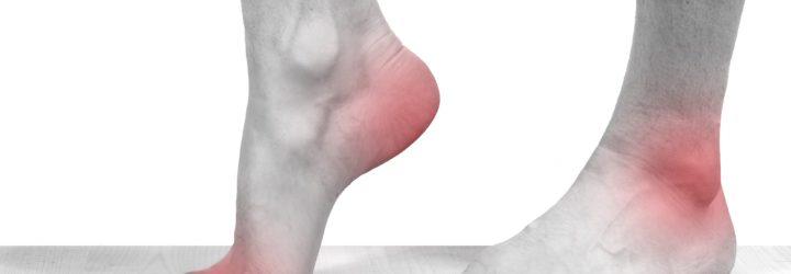 Подагра: симптомы и признаки с фото, лечение у женщин и ...