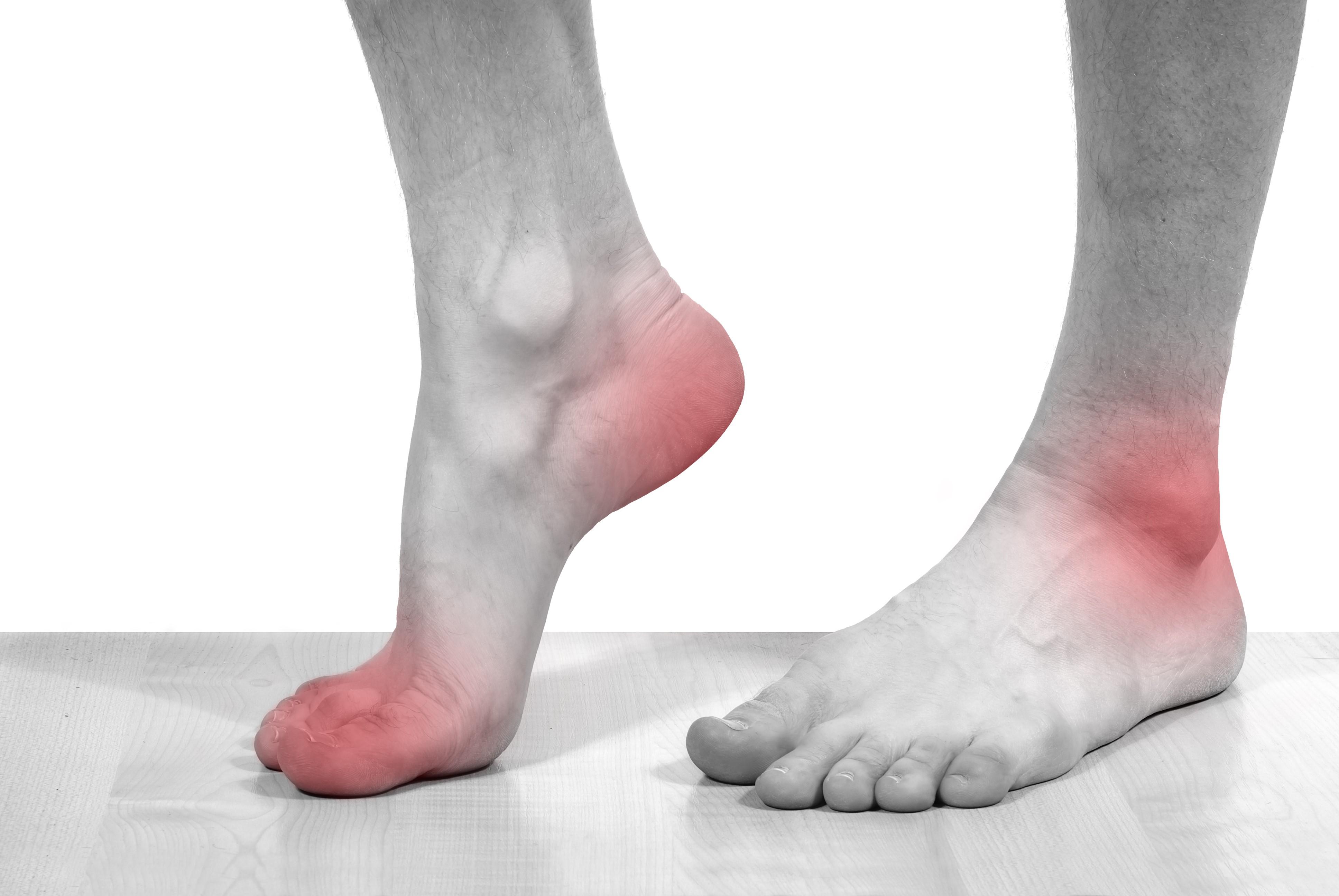 Подагра: симптомы и признаки с фото, лечение и рекомендации по образу жизни