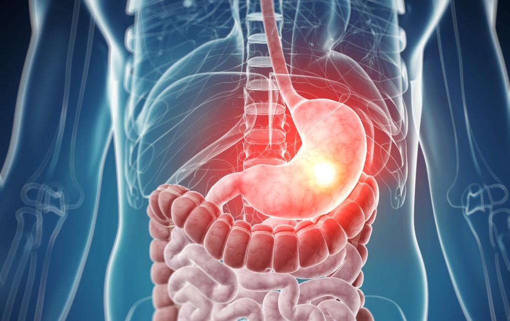 Повышенная кислотность желудка: симптомы, лечение, рекомендуемая диета