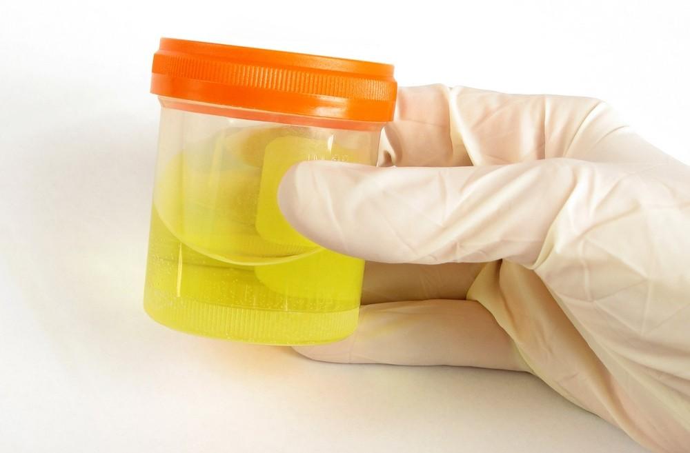 Лейкоциты в моче ребёнка и взрослого: норма или повышенные?