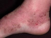 Атопический дерматит у взрослых на ногах