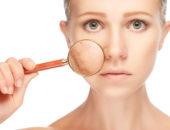 Купероз на лице: фото, лечение, крема от купероза