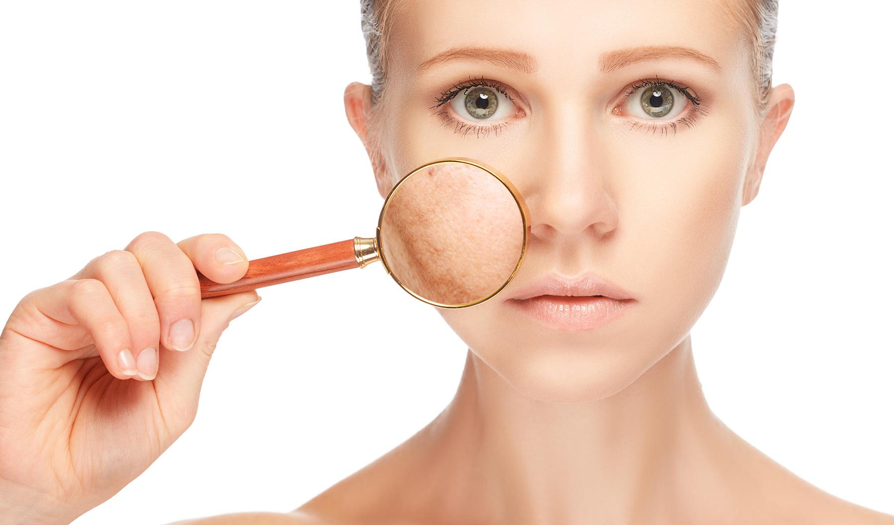 Купероз на лице: фото сосудистых звездочек, причины и лечение