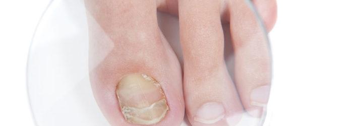 Пальцы ног под микроскопом