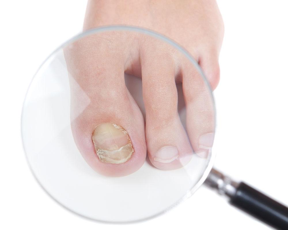 Грибок ногтей на ногах: фото, симптомы, лечение