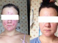 Кристина до и после применения Полисорба