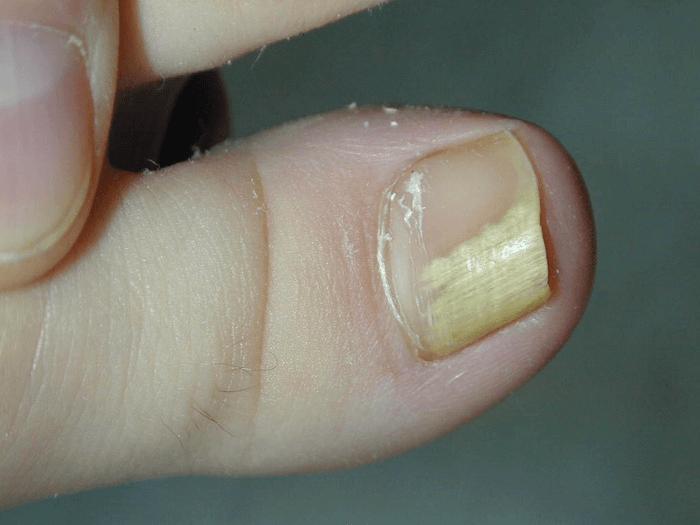 Самое лучшее средство для лечения грибка ногтей на ногах