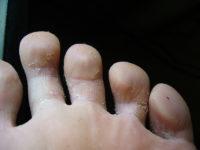 Грибок между пальцами на ногах