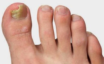Грибок ногтей фото