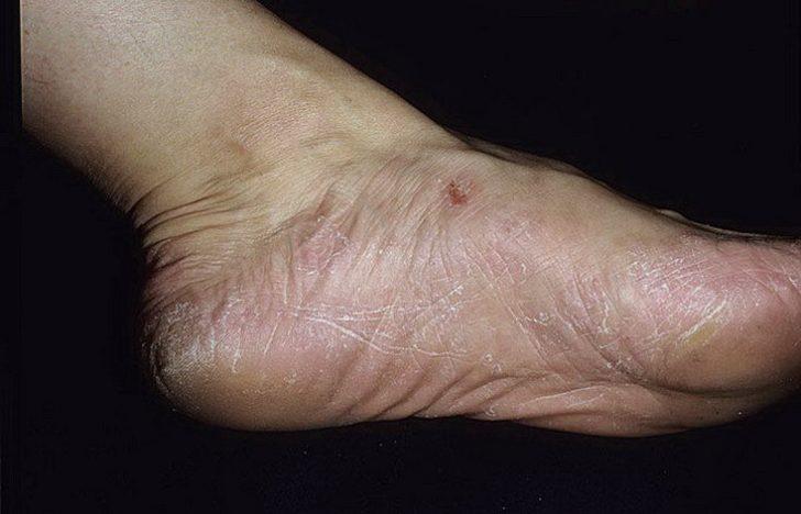 Чем вылечить грибок на ногах ногти
