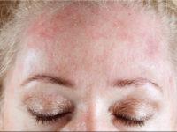 Холодовая крапивница на лице у женщины