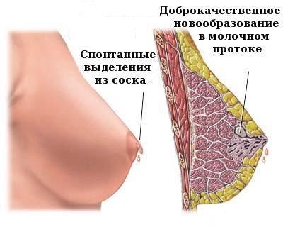 Как выглядит внутрипротоковая папиллома