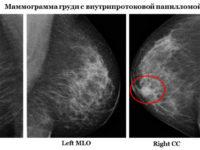 Как выглядит заболевание на маммографии