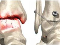 Артродез коленного сустава