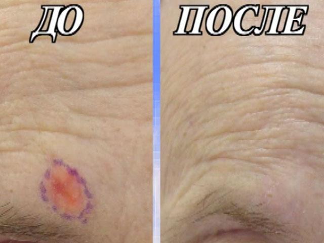 Кожа до и после удаления базалиомы