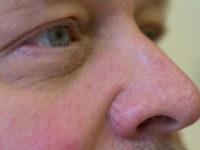 Купероз на носу мужчины