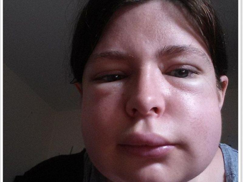 аллергия на гречку у собаки симптомы