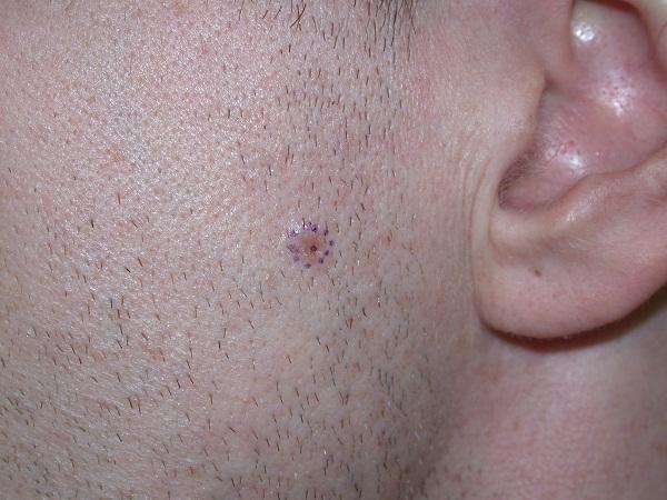 Базалиома в начальной стадии развития
