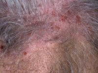 Нейродермит кожи головы