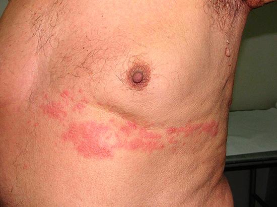 Опоясывающий герпес на груди мужчины