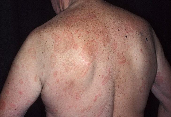 Сыпь на теле у ребенка фото лечение