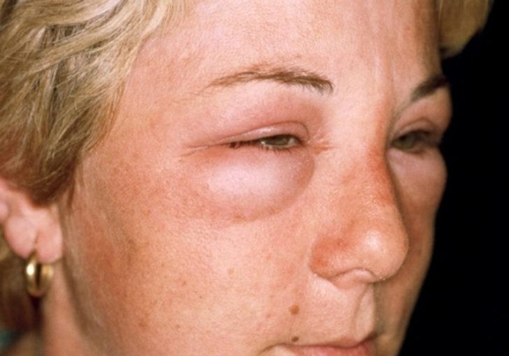 может быть аллергия на хурму