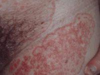 Первичный сифилис у женщины