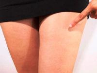 Первые проявления варикоза у женщин