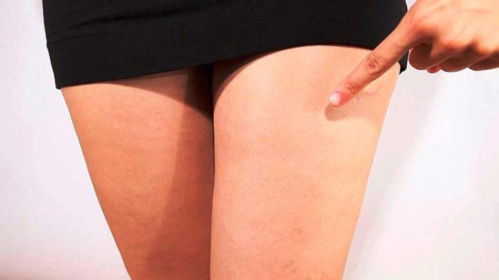 Причины появления варикоза у беременных