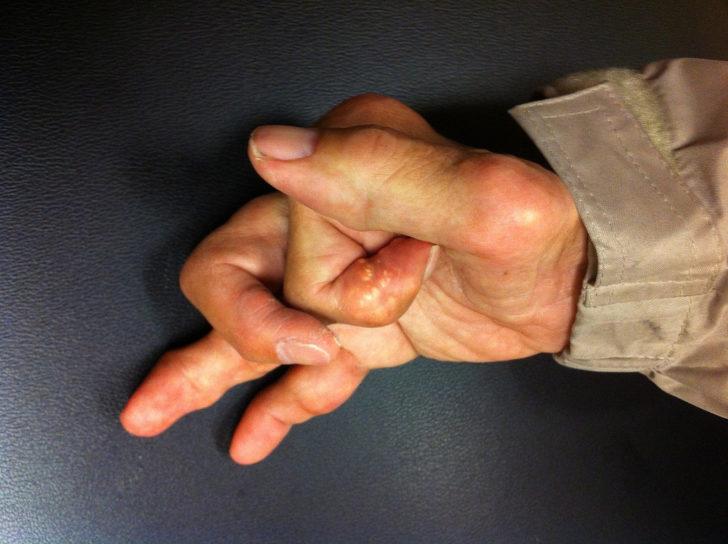 Подагра признаки симптомы и лечение подагрического артрита